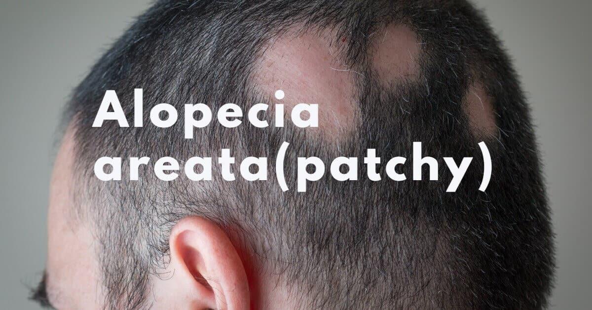 Alopecia areata (patchy)-body hairloss