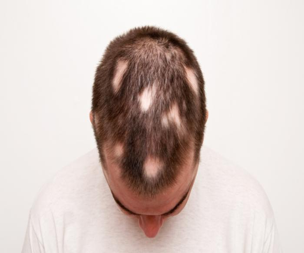 Alopecia areata - does stress cause hair loss