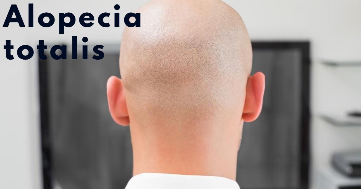 Alopecia totalis-body hairloss