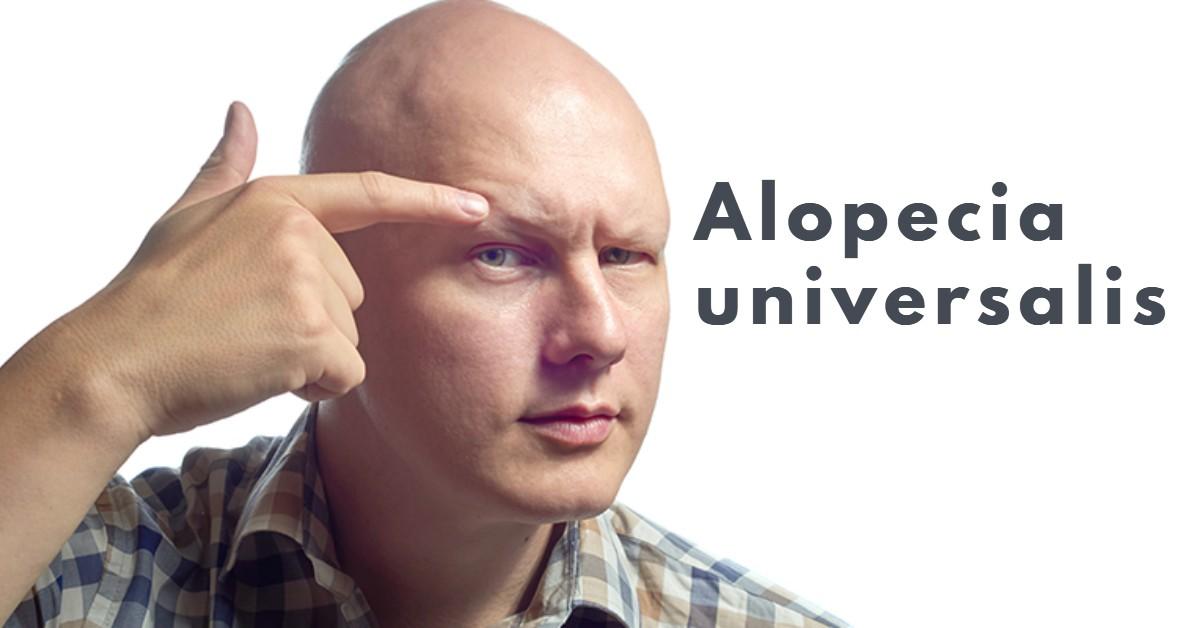 Alopecia universalis-body hairloss