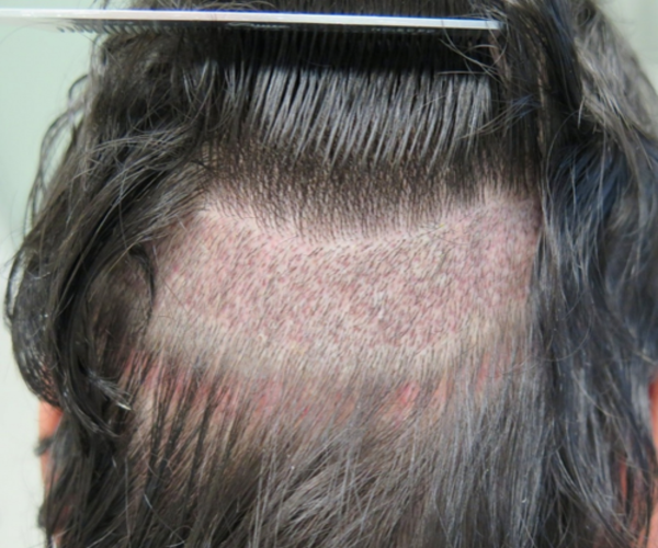 Follicular Unit Extraction (FUE)-body hairloss