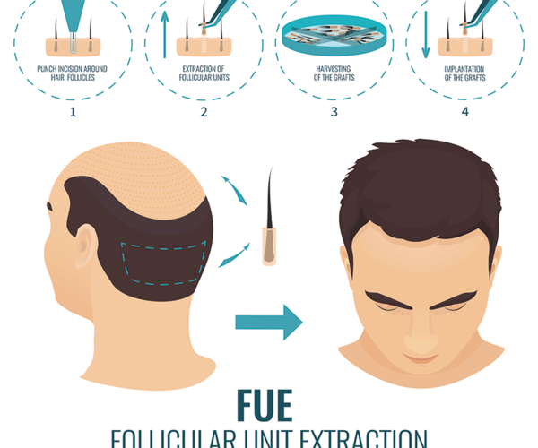 FUE - Hair Transplant Cost