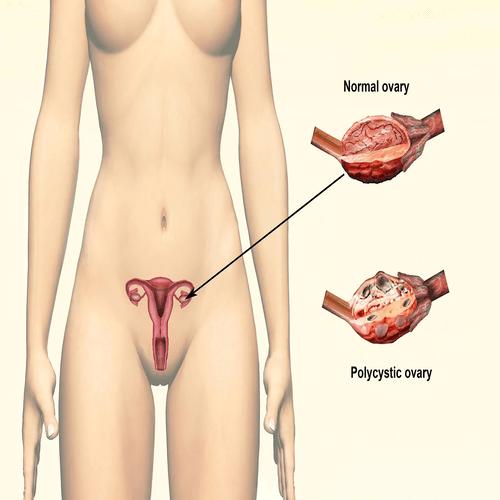 Hormonal Imbalance-body hairloss