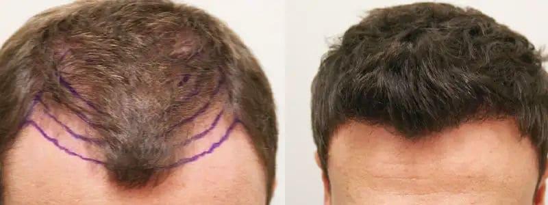 minoxidil after hair transplant - minoxidil