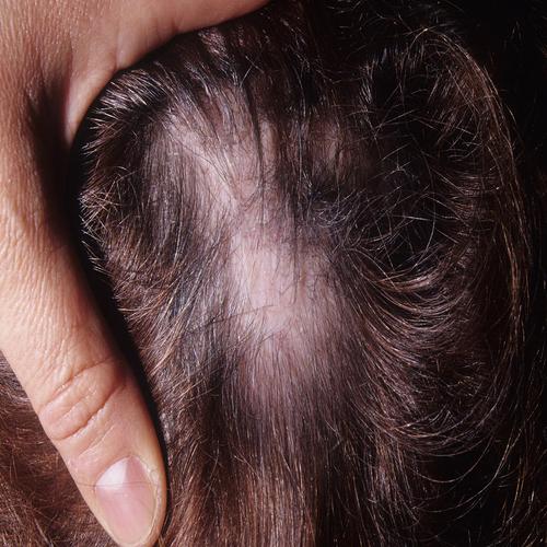 Scarring Alopecia-body hairloss
