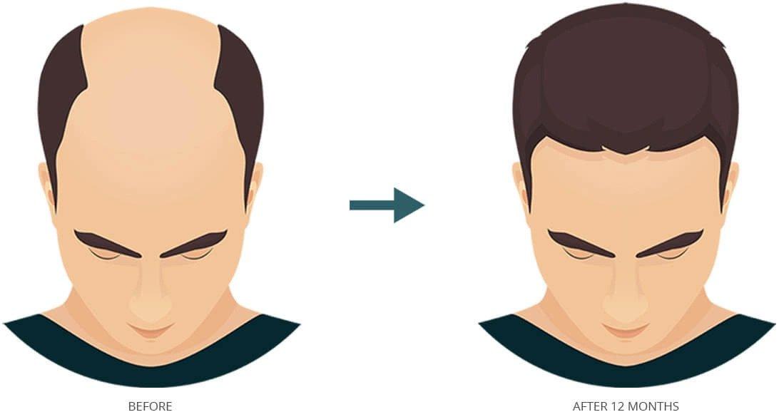 fut hair transplant- transgender hair transplant