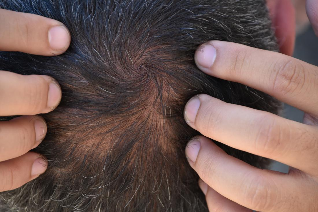 What is the Mechanism of TE - covid hair loss