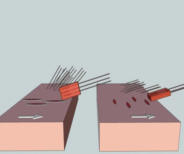 Micro-grafting & Slit Grafting-body hairloss