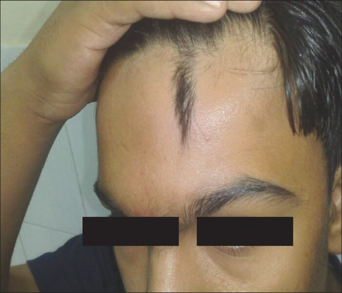 Naevoid hypertrichosis -  hypertrichosis