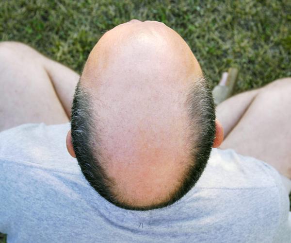 Scalp Reduction-body hairloss