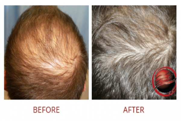 PRP therapy-body hairloss