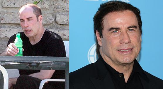 John Travolta-body hairloss