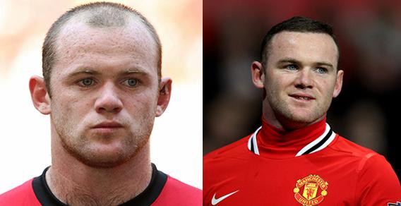 Wayne Rooney-body hairloss
